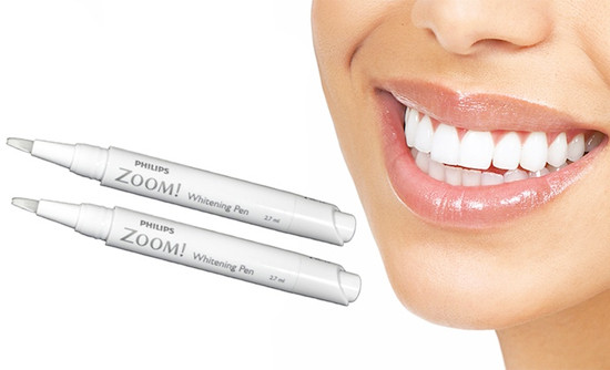 Get White Teeth for Your Wedding @weddingchicks