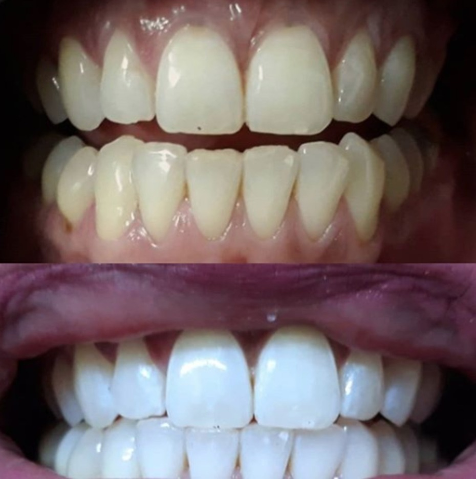 Snow Teeth Whitening Before and After Teeth Results